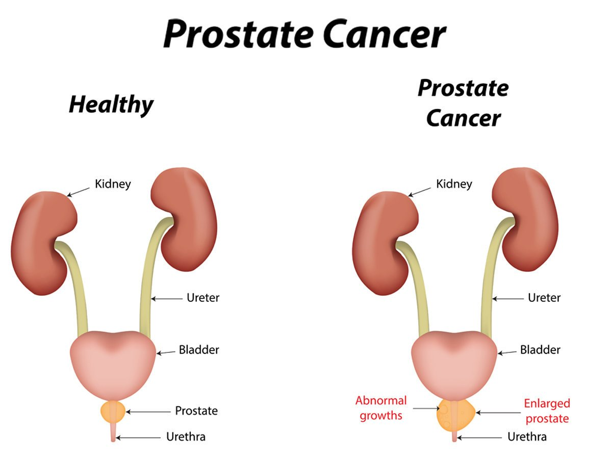 Why You Should Have Your Prostate Checked | Best Urologist NYC