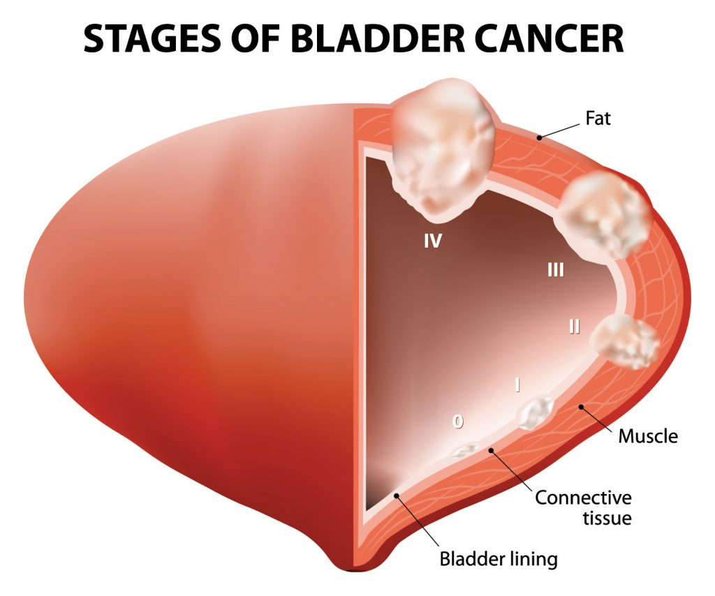 Common Symptoms of Bladder Cancer