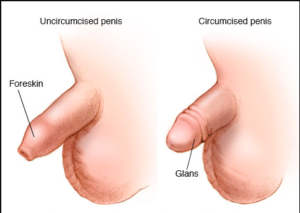 adult-circumcision-expert-urologist-nyc-surgeons-01
