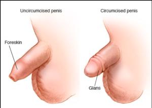 adult-circumcision-expert-urologist-nyc-surgeons-01