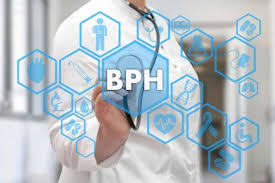 bph-expert-information-best-urologists-nyc-03